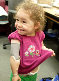Marin is wearing her old prosthetic arm, which doesn't have a hand that grips electronically.